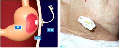 peg 胃ろう 造設と交換について 城東中央病院 大阪市城東区 医療